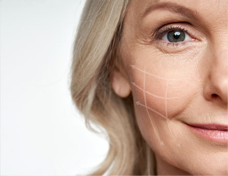 """The Nonsurgical Facelift Called """"Sugar Threading"""""""